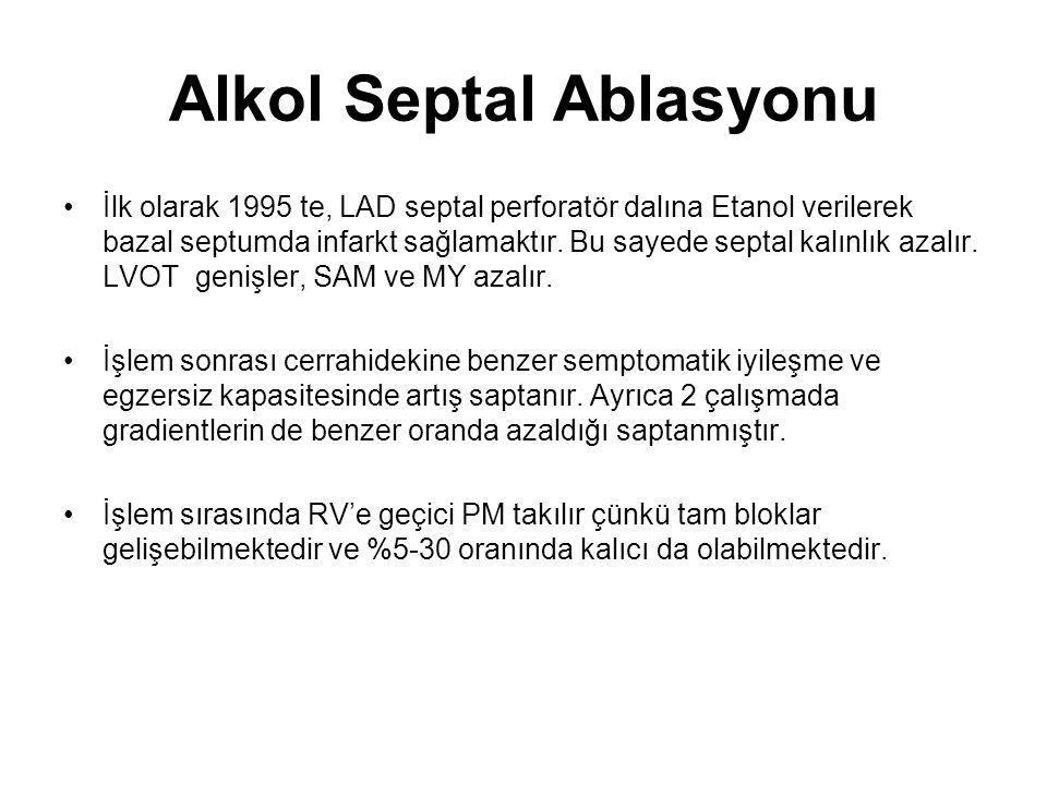 Alkol Septal Ablasyonu İlk olarak 1995 te, LAD septal perforatör dalına Etanol verilerek bazal septumda infarkt sağlamaktır.