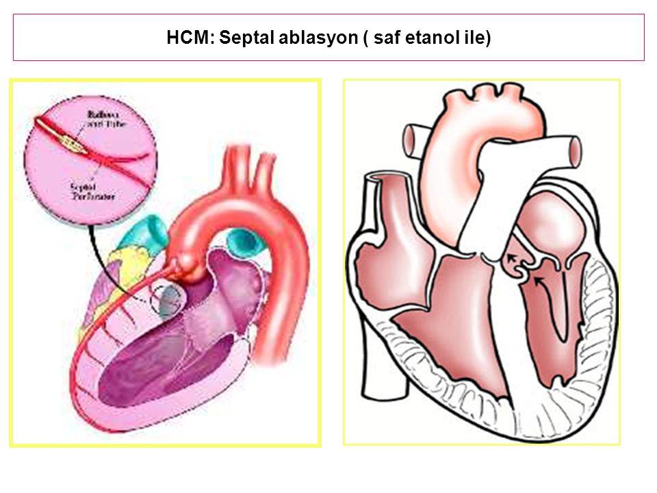 HCM: Septal ablasyon ( saf etanol ile)