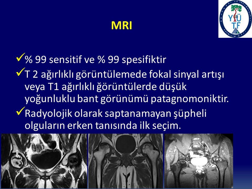 MRI % 99 sensitif ve % 99 spesifiktir T 2 ağırlıklı görüntülemede fokal sinyal artışı veya T1 ağırlıklı ğörüntülerde düşük yoğunluklu bant görünümü patagnomoniktir.