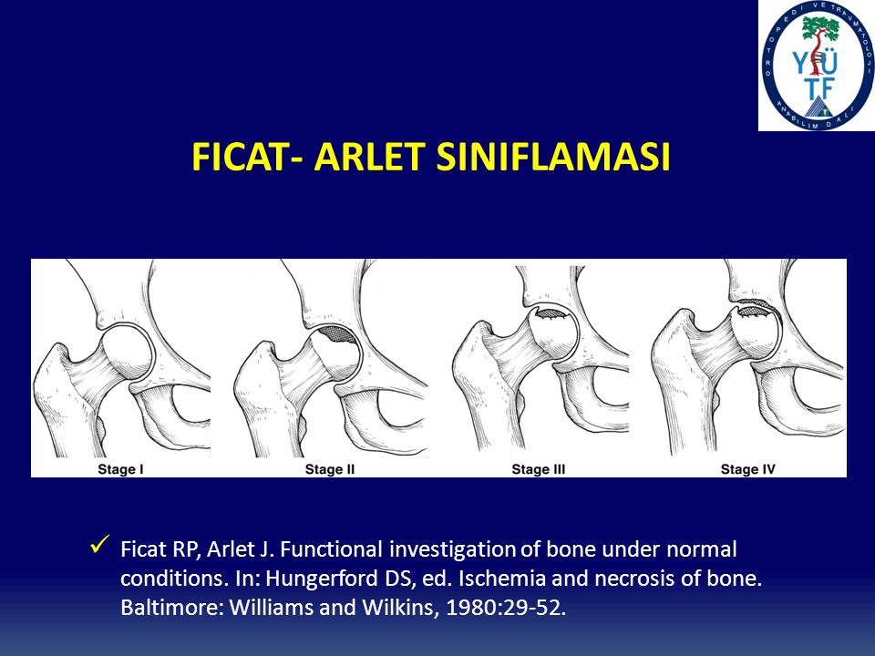 FICAT- ARLET SINIFLAMASI Ficat RP, Arlet J.