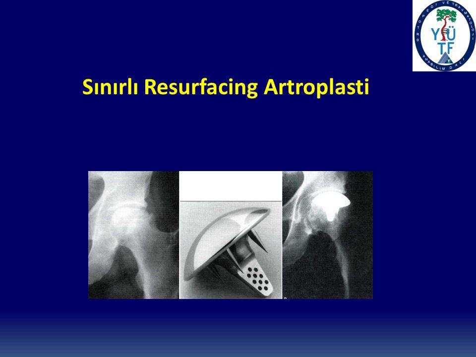 Sınırlı Resurfacing Artroplasti