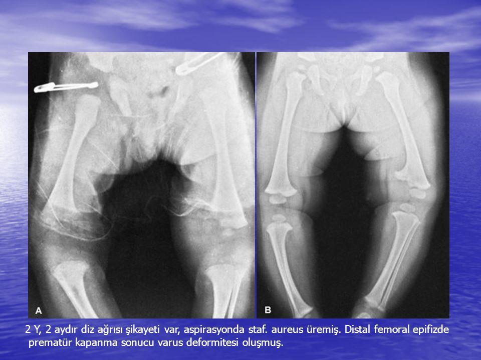 2 Y, 2 aydır diz ağrısı şikayeti var, aspirasyonda staf. aureus üremiş. Distal femoral epifizde prematür kapanma sonucu varus deformitesi oluşmuş.
