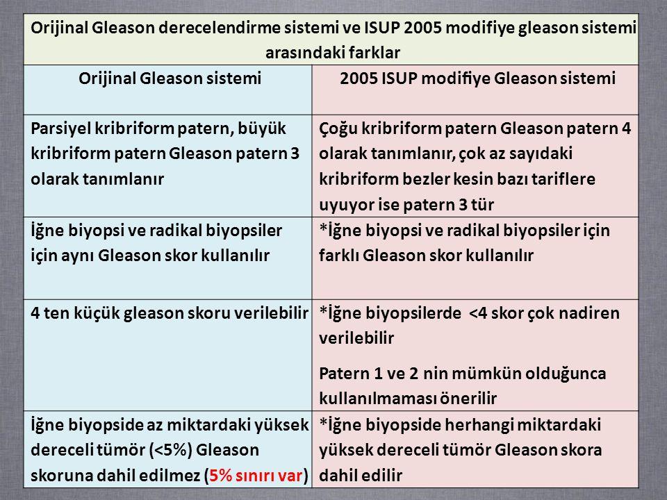 Orijinal Gleason derecelendirme sistemi ve ISUP 2005 modifiye gleason sistemi arasındaki farklar Orijinal Gleason sistemi2005 ISUP modifiye Gleason sistemi Parsiyel kribriform patern, büyük kribriform patern Gleason patern 3 olarak tanımlanır Çoğu kribriform patern Gleason patern 4 olarak tanımlanır, çok az sayıdaki kribriform bezler kesin bazı tariflere uyuyor ise patern 3 tür İğne biyopsi ve radikal biyopsiler için aynı Gleason skor kullanılır *İğne biyopsi ve radikal biyopsiler için farklı Gleason skor kullanılır 4 ten küçük gleason skoru verilebilir*İğne biyopsilerde <4 skor çok nadiren verilebilir Patern 1 ve 2 nin mümkün olduğunca kullanılmaması önerilir İğne biyopside az miktardaki yüksek dereceli tümör (<5%) Gleason skoruna dahil edilmez (5% sınırı var) *İğne biyopside herhangi miktardaki yüksek dereceli tümör Gleason skora dahil edilir