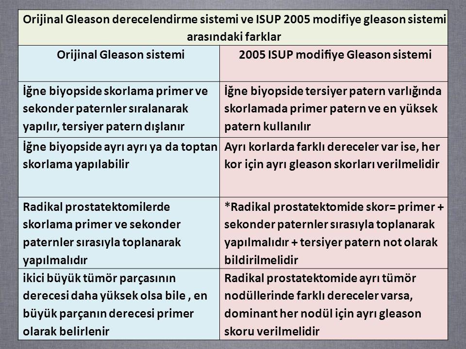 Orijinal Gleason derecelendirme sistemi ve ISUP 2005 modifiye gleason sistemi arasındaki farklar Orijinal Gleason sistemi2005 ISUP modifiye Gleason sistemi İğne biyopside skorlama primer ve sekonder paternler sıralanarak yapılır, tersiyer patern dışlanır İğne biyopside tersiyer patern varlığında skorlamada primer patern ve en yüksek patern kullanılır İğne biyopside ayrı ayrı ya da toptan skorlama yapılabilir Ayrı korlarda farklı dereceler var ise, her kor için ayrı gleason skorları verilmelidir Radikal prostatektomilerde skorlama primer ve sekonder paternler sırasıyla toplanarak yapılmalıdır *Radikal prostatektomide skor= primer + sekonder paternler sırasıyla toplanarak yapılmalıdır + tersiyer patern not olarak bildirilmelidir ikici büyük tümör parçasının derecesi daha yüksek olsa bile, en büyük parçanın derecesi primer olarak belirlenir Radikal prostatektomide ayrı tümör nodüllerinde farklı dereceler varsa, dominant her nodül için ayrı gleason skoru verilmelidir