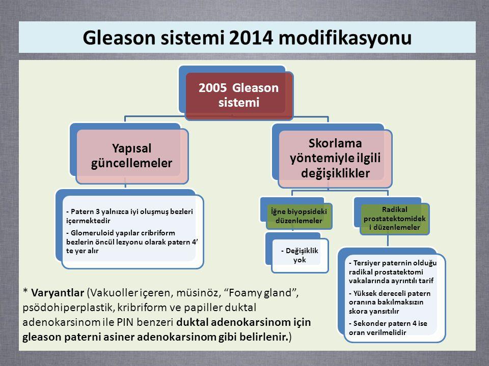 2005 Gleason sistemi Yapısal güncellemeler - Patern 3 yalnızca iyi oluşmuş bezleri içermektedir - Glomeruloid yapılar cribriform bezlerin öncül lezyonu olarak patern 4' te yer alır Skorlama yöntemiyle ilgili değişiklikler İğne biyopsideki düzenlemeler - Değişiklik yok Radikal prostatektomidek i düzenlemeler - Tersiyer paternin olduğu radikal prostatektomi vakalarında ayrıntılı tarif - Yüksek dereceli patern oranına bakılmaksızın skora yansıtılır - Sekonder patern 4 ise oran verilmelidir Gleason sistemi 2014 modifikasyonu * Varyantlar (Vakuoller içeren, müsinöz, Foamy gland , psödohiperplastik, kribriform ve papiller duktal adenokarsinom ile PIN benzeri duktal adenokarsinom için gleason paterni asiner adenokarsinom gibi belirlenir.)