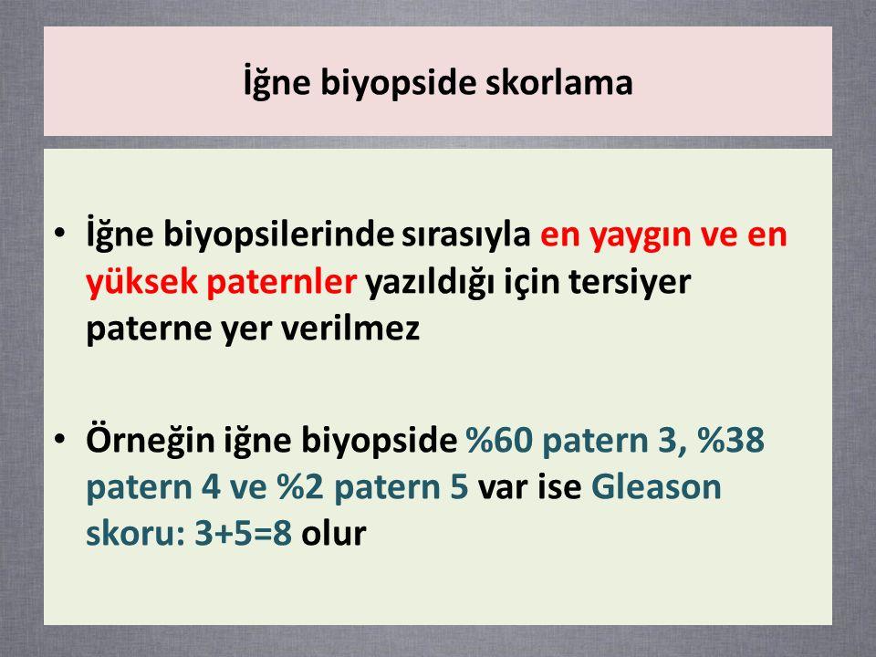 İğne biyopsilerinde sırasıyla en yaygın ve en yüksek paternler yazıldığı için tersiyer paterne yer verilmez Örneğin iğne biyopside %60 patern 3, %38 patern 4 ve %2 patern 5 var ise Gleason skoru: 3+5=8 olur İğne biyopside skorlama