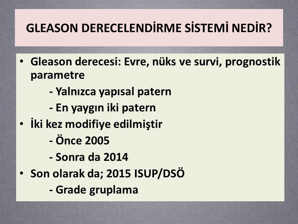 Gleason derecesi: Evre, nüks ve survi, prognostik parametre - Yalnızca yapısal patern - En yaygın iki patern İki kez modifiye edilmiştir - Önce 2005 - Sonra da 2014 Son olarak da; 2015 ISUP/DSÖ - Grade gruplama GLEASON DERECELENDİRME SİSTEMİ NEDİR?