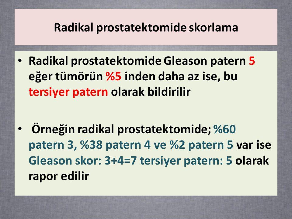 Radikal prostatektomide Gleason patern 5 eğer tümörün %5 inden daha az ise, bu tersiyer patern olarak bildirilir Örneğin radikal prostatektomide; %60 patern 3, %38 patern 4 ve %2 patern 5 var ise Gleason skor: 3+4=7 tersiyer patern: 5 olarak rapor edilir Radikal prostatektomide skorlama