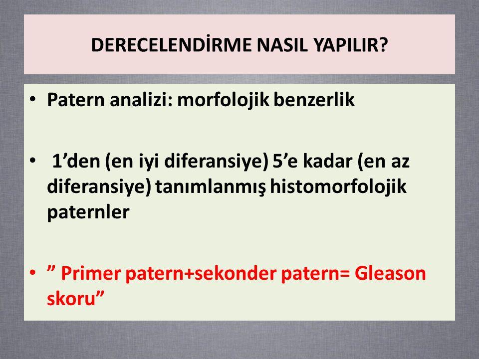 Patern 1: Hemen hemen hepsi aynı boyutlarda birbirlerine çok yakın yerleşimli bezlerden oluşan iyi sınırlı nodüller Patern 2: Patern 1'e benzer özellikler, ancak çevre stromaya fokal invazyon, bezlerdeki şekil ve boyut açısından benzerlik daha az Patern 3: Birbirlerinden ayrı, non-neoplastik asinilerin arasını infiltre eden, farklı şekil ve boyutlarda daha küçük bezler Patern 4: Birleşen küçük bezler, iyi gelişmemiş ve lümenleri tam olarak oluşmayan birleşme eğilimindeki bezler, büyük veya sınırları düzensiz kribriform bezler Patern 5: Bez yapısı kaybolmuştur, solid gruplar, kordonlar veya infiltratif tek tek hücreler, ek olarak invaziv odakta her tür nekroz Gleason derecelendirme sistemi (1966-1974)