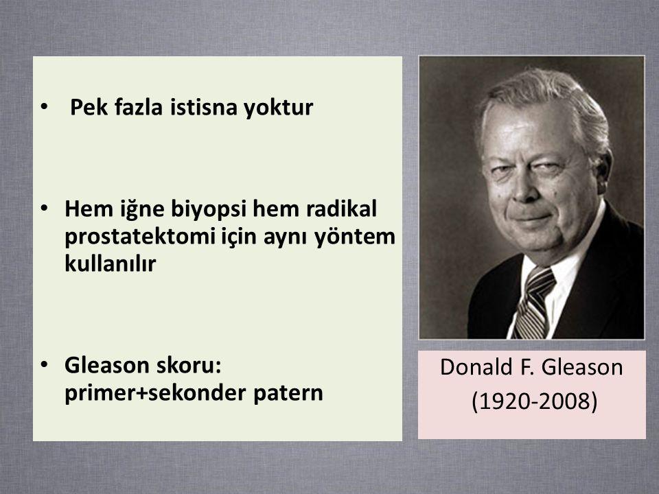 Pek fazla istisna yoktur Hem iğne biyopsi hem radikal prostatektomi için aynı yöntem kullanılır Gleason skoru: primer+sekonder patern Donald F.