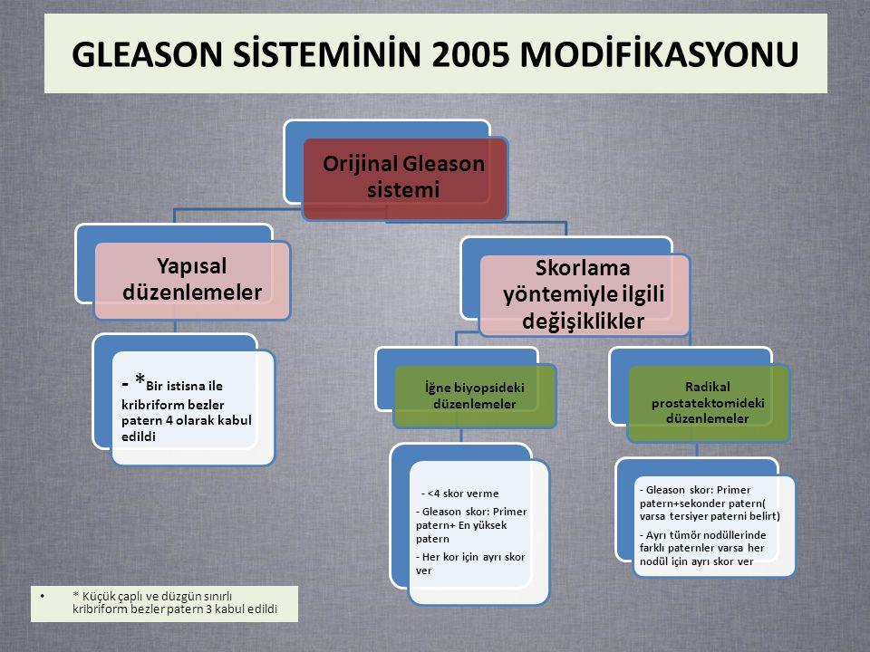 GLEASON SİSTEMİNİN 2005 MODİFİKASYONU Orijinal Gleason sistemi Yapısal düzenlemeler - * Bir istisna ile kribriform bezler patern 4 olarak kabul edildi Skorlama yöntemiyle ilgili değişiklikler İğne biyopsideki düzenlemeler - <4 skor verme - Gleason skor: Primer patern+ En yüksek patern - Her kor için ayrı skor ver Radikal prostatektomideki düzenlemeler - Gleason skor: Primer patern+sekonder patern( varsa tersiyer paterni belirt) - Ayrı tümör nodüllerinde farklı paternler varsa her nodül için ayrı skor ver * Küçük çaplı ve düzgün sınırlı kribriform bezler patern 3 kabul edildi