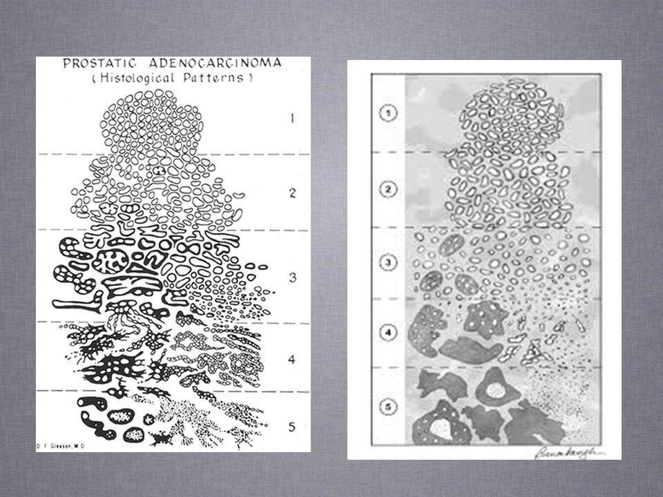 Gleason skor 7 kanserlerde patern 4 ün % oranını vermek kuvvetle önerilmektedir Özellikle 3+4=7 olanlarda patern 4 ün %5 in altında minimal bir oran mı olduğu yada %40- 50 oranda mı olduğu mutlaka bildirilmelidi