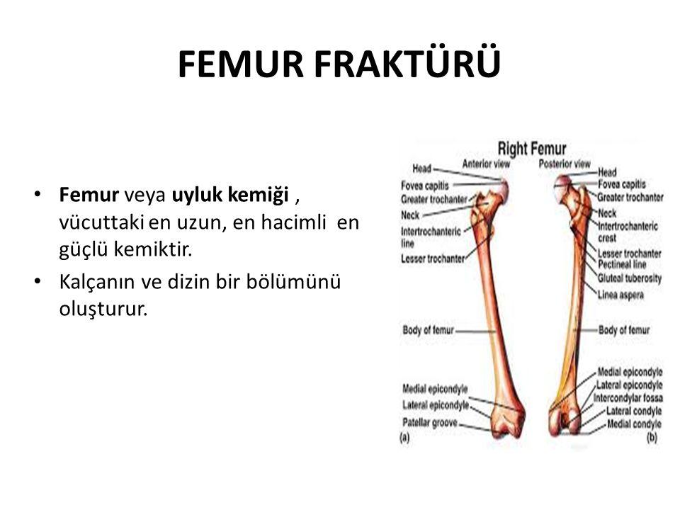 FEMUR FRAKTÜRÜ Femur veya uyluk kemiği, vücuttaki en uzun, en hacimli en güçlü kemiktir. Kalçanın ve dizin bir bölümünü oluşturur.
