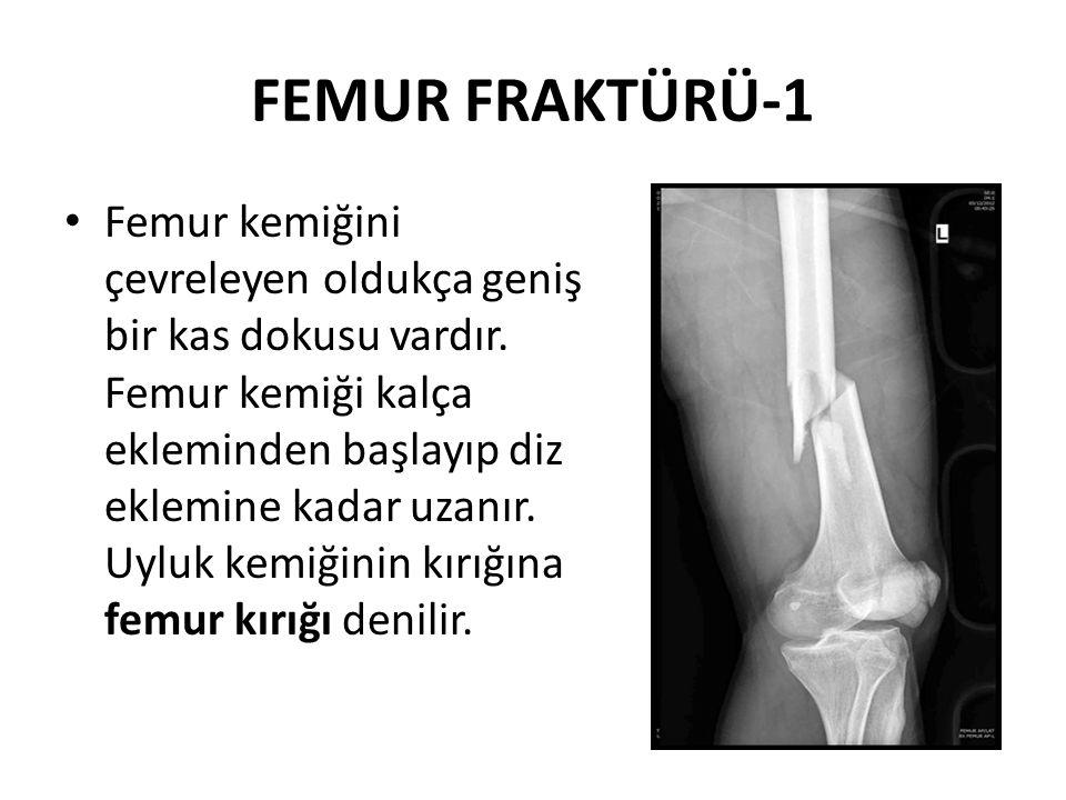 FEMUR FRAKTÜRÜ-2 Vücudun en sağlam kemiklerinden biri olan femur kırığı, trafik kazaları, yüksekten düşme, ateşli silah yaralanmaları gibi yüksek enerjili travmalar sonucu görülür.