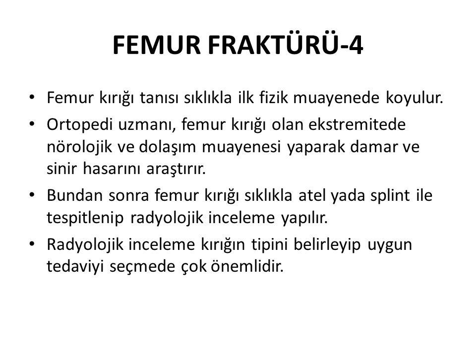 FEMUR FRAKTÜRÜ-4 Femur kırığı tanısı sıklıkla ilk fizik muayenede koyulur.