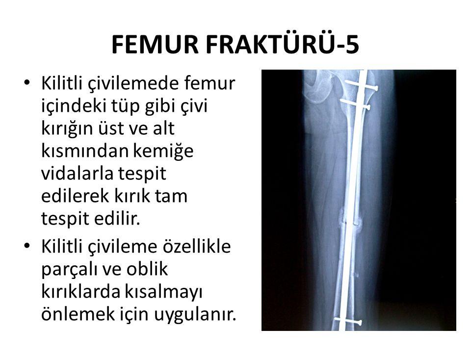 FEMUR FRAKTÜRÜ-5 Kilitli çivilemede femur içindeki tüp gibi çivi kırığın üst ve alt kısmından kemiğe vidalarla tespit edilerek kırık tam tespit edilir