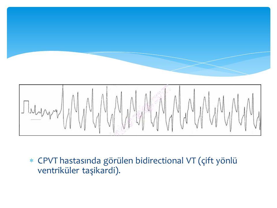  CPVT hastasında görülen bidirectional VT (çift yönlü ventriküler taşikardi).