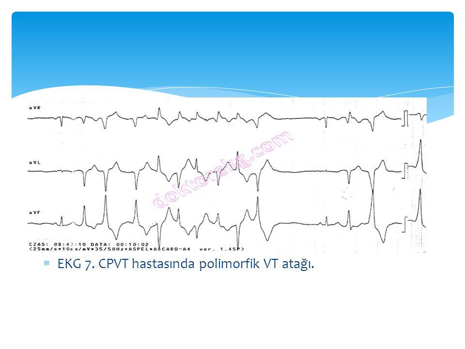  EKG 7. CPVT hastasında polimorfik VT atağı.