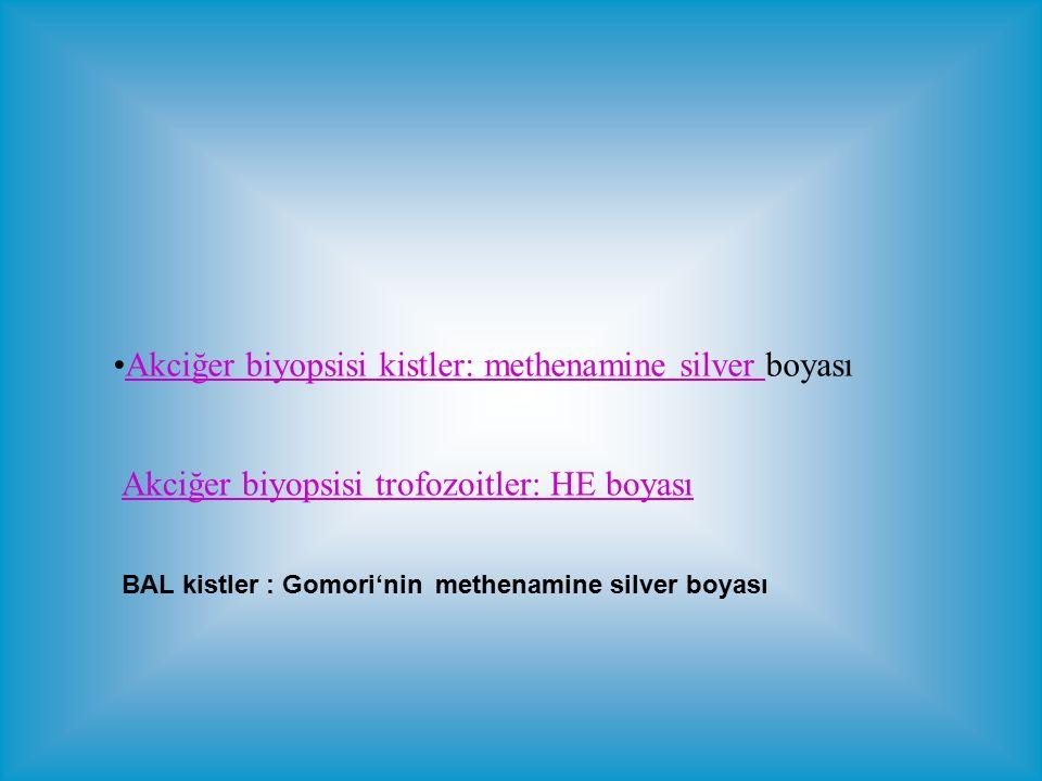 Akciğer biyopsisi kistler: methenamine silver boyasıAkciğer biyopsisi kistler: methenamine silver Akciğer biyopsisi trofozoitler: HE boyası BAL kistler : Gomori'nin methenamine silver boyası