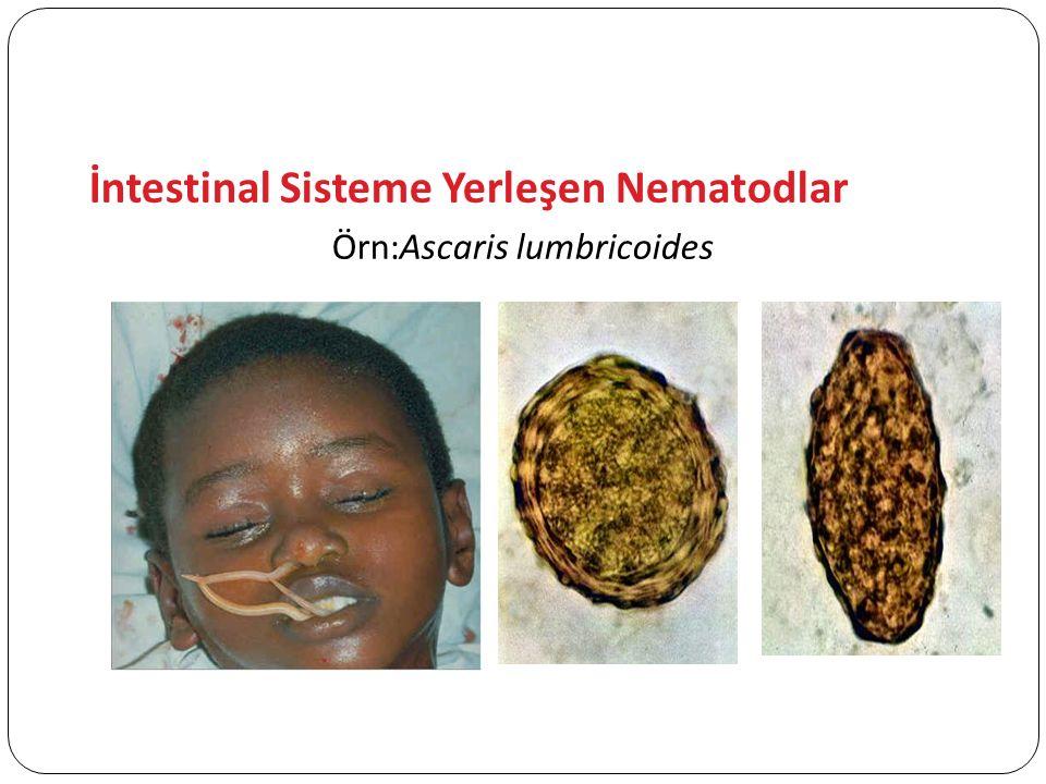 İntestinal Sisteme Yerleşen Nematodlar Örn:Ascaris lumbricoides
