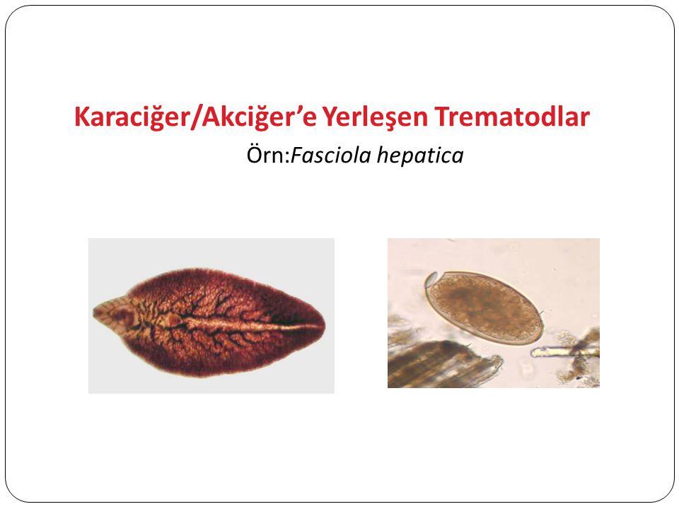 Karaciğer/Akciğer'e Yerleşen Trematodlar Örn:Fasciola hepatica