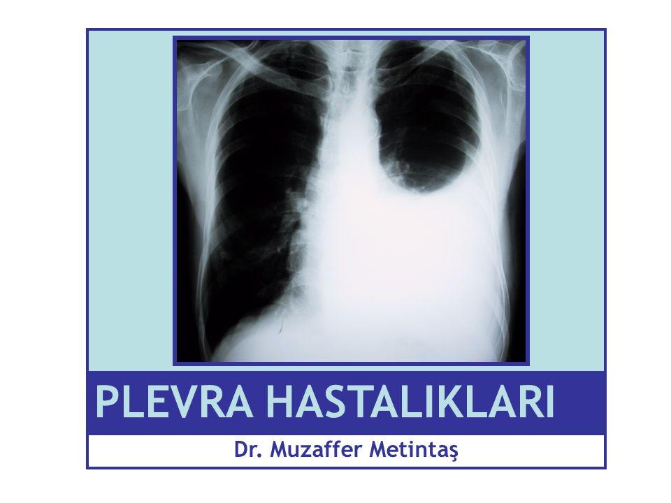 Metintaş S: Plevra Hastalıkları, TD Yayınları; 2003 KKY 80 000 Bakteriyel pnömoni 40 000 Metastatik malign plevral sıvı 30 000 Tüberküloz plörezi 1 500 Mezotelyoma 600 Diğerleri 80 000 Toplam 200,000 / yıl Türkiye için düşünülen plevral sıvı insidensi