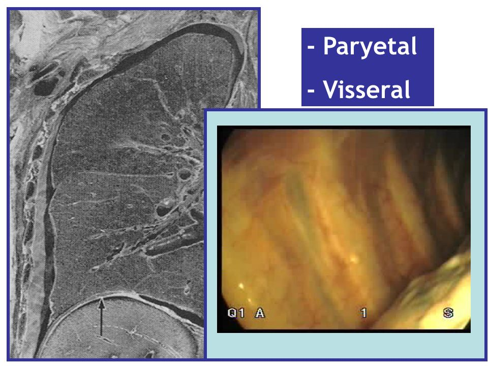 1.Plevral sıvı sitoloji tekrarı 2.Kapalı plevra biopsisi tekrarı 3.Bilgisayarlı toraks tomografisi tekrarı 4.Torakoskopi 5.PET veya tüm sistem taraması Ayırıcı tanı için tetkik öneriniz:
