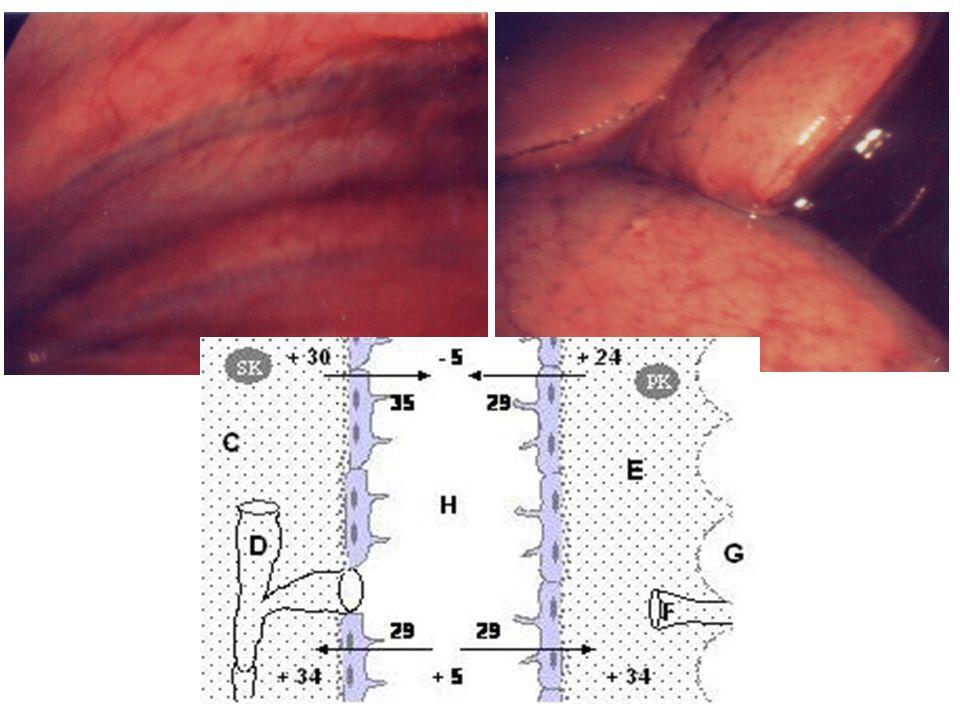 Kazeifikasyon nekrozu gösteren granülomatöz inflamasyon