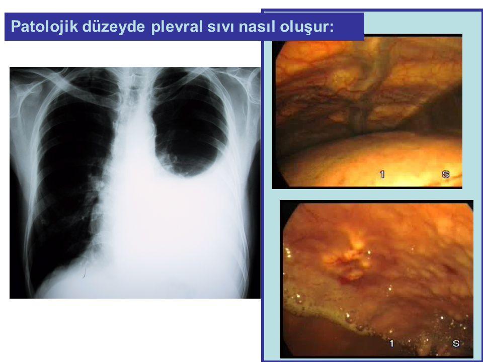 D-Dimer sınırda yüksek 1.Plevral sıvı sitolojisi 2.Plevral sıvı ADA 3.Plevral sıvı bakteriyel kültürü 4.Serum ANA, RF düzeyleri 5.Spiral bilgisayarlı toraks tomografisi 6.EKO Hasta üzerine ne çalışalım :