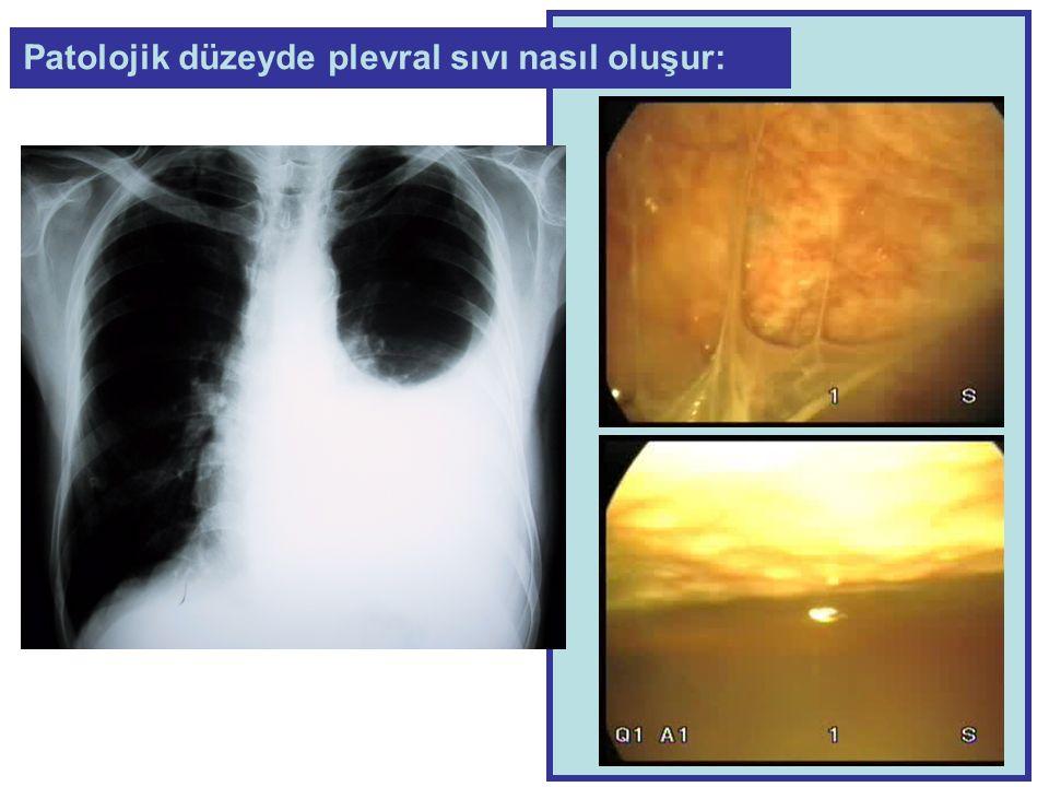1.Kapalı plevra iğne biopsisi + Sitoloji, 2.Torakoskopi, 3.Plevra sıvı kültürleri, 4.Sıvıyı boşalt 5.Yeniden bilgisayarlı tomografi Tekrarlayan emboli mi var yoksa başka sorun mu .