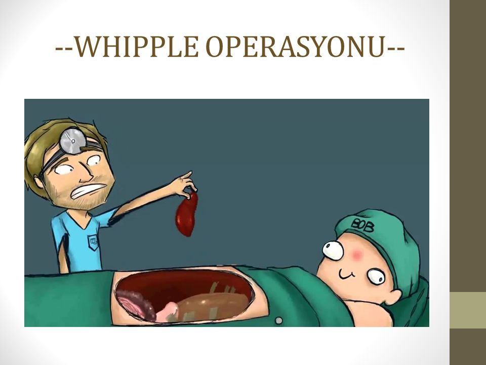 --WHIPPLE OPERASYONU--