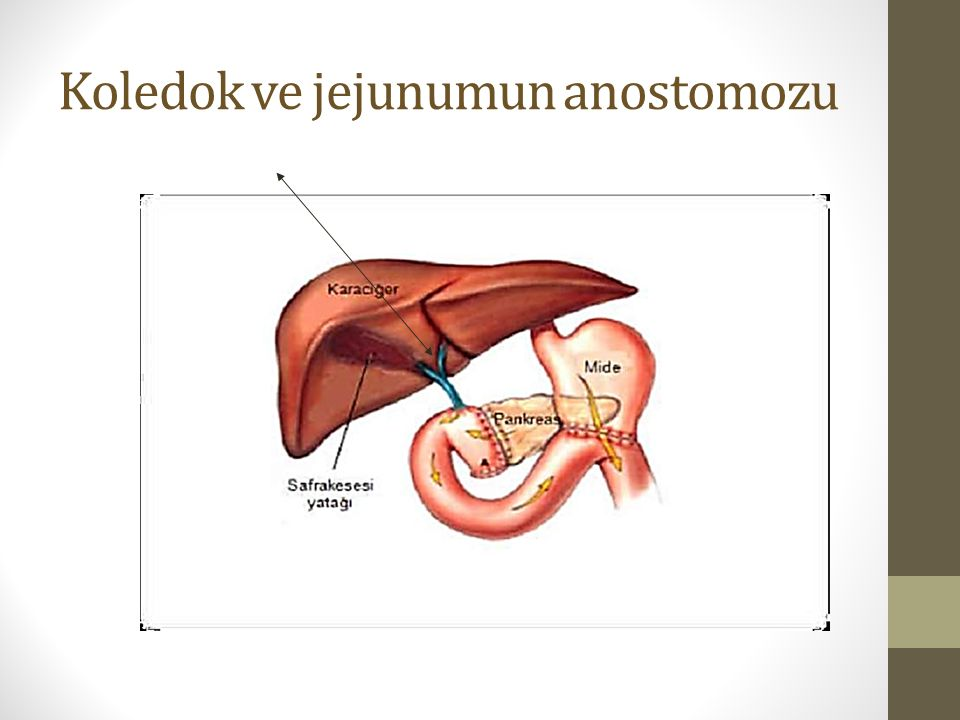 Koledok ve jejunumun anostomozu