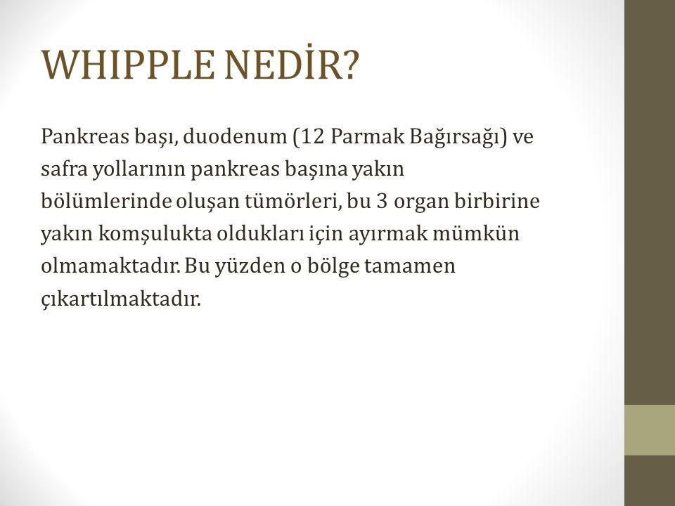 WHIPPLE NEDİR.