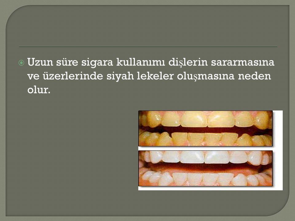  Uzun süre sigara kullanımı di ş lerin sararmasına ve üzerlerinde siyah lekeler olu ş masına neden olur.