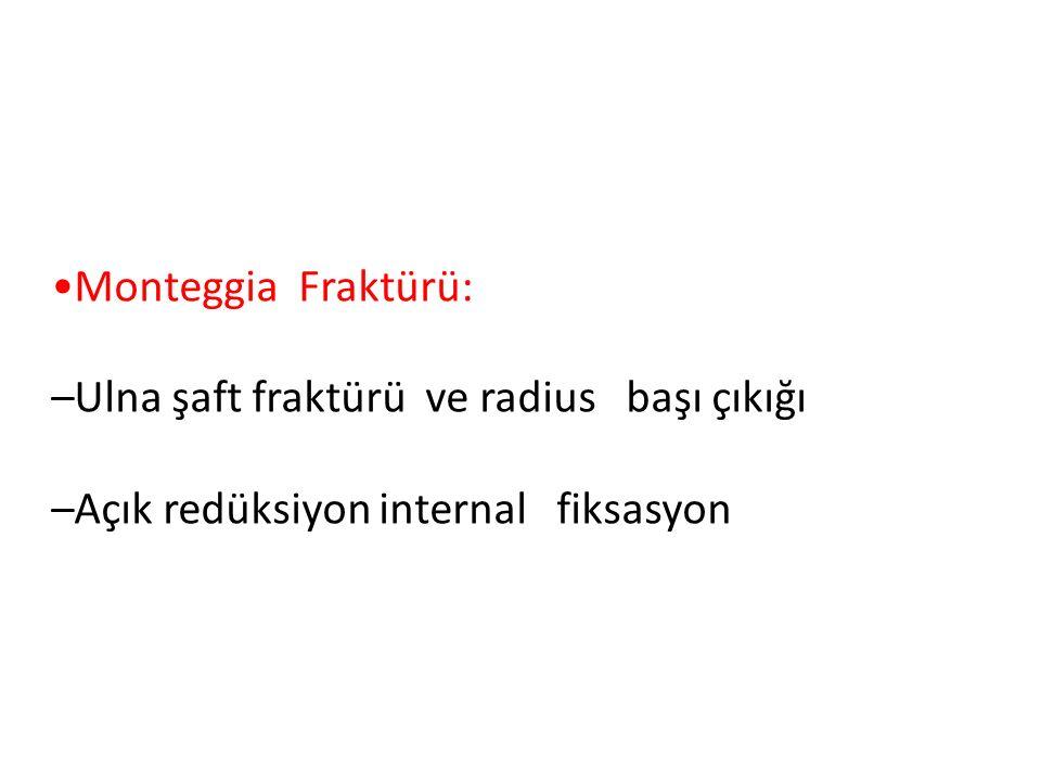 Monteggia Fraktürü: –Ulna şaft fraktürü ve radius başı çıkığı –Açık redüksiyon internal fiksasyon