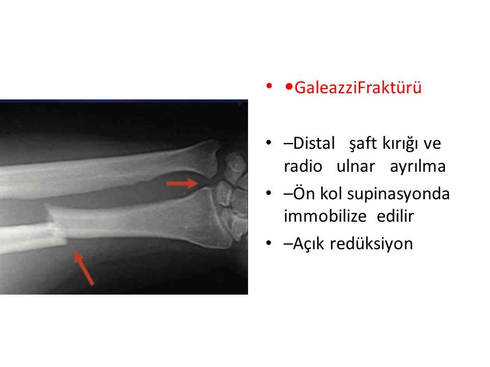 GaleazziFraktürü –Distal şaft kırığı ve radio ulnar ayrılma –Ön kol supinasyonda immobilize edilir –Açık redüksiyon