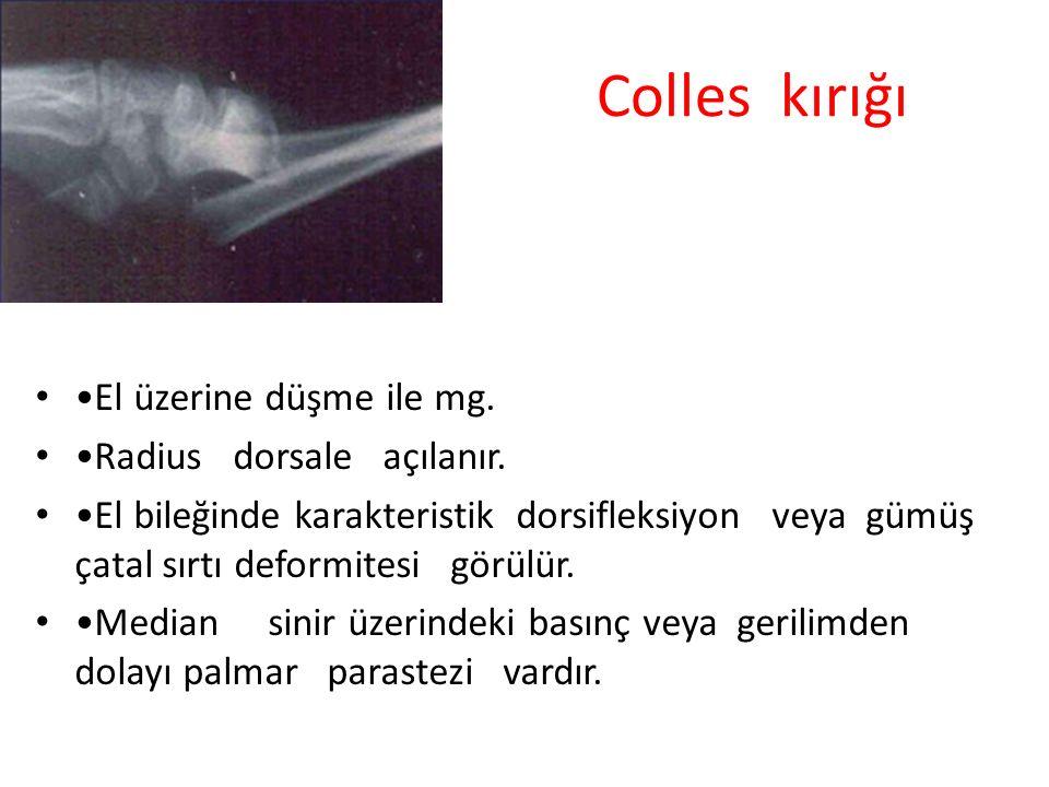 Colles kırığı El üzerine düşme ile mg. Radius dorsale açılanır. El bileğinde karakteristik dorsifleksiyon veya gümüş çatal sırtı deformitesi görülür.