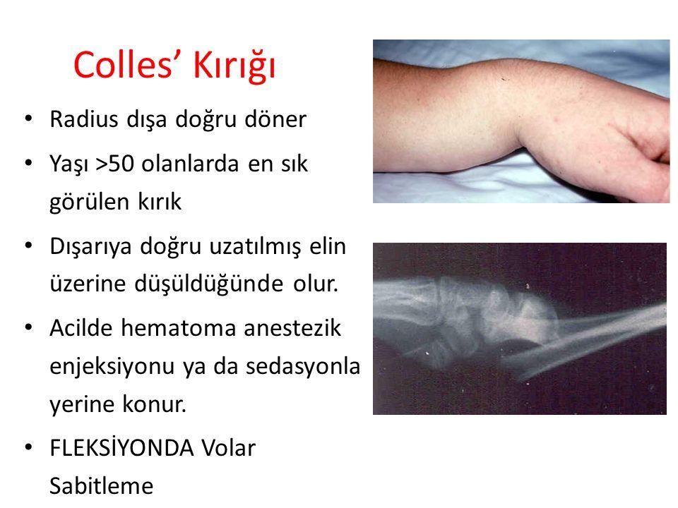 Colles' Kırığı Radius dışa doğru döner Yaşı >50 olanlarda en sık görülen kırık Dışarıya doğru uzatılmış elin üzerine düşüldüğünde olur. Acilde hematom