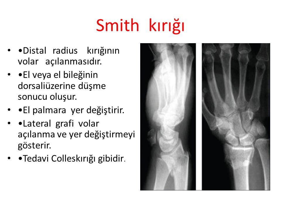Smith kırığı Distal radius kırığının volar açılanmasıdır. El veya el bileğinin dorsaliüzerine düşme sonucu oluşur. El palmara yer değiştirir. Lateral