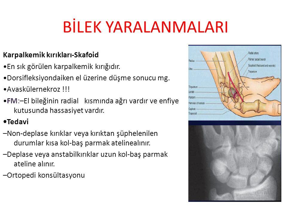 BİLEK YARALANMALARI Karpalkemik kırıkları-Skafoid En sık görülen karpalkemik kırığıdır. Dorsifleksiyondaiken el üzerine düşme sonucu mg. Avaskülernekr