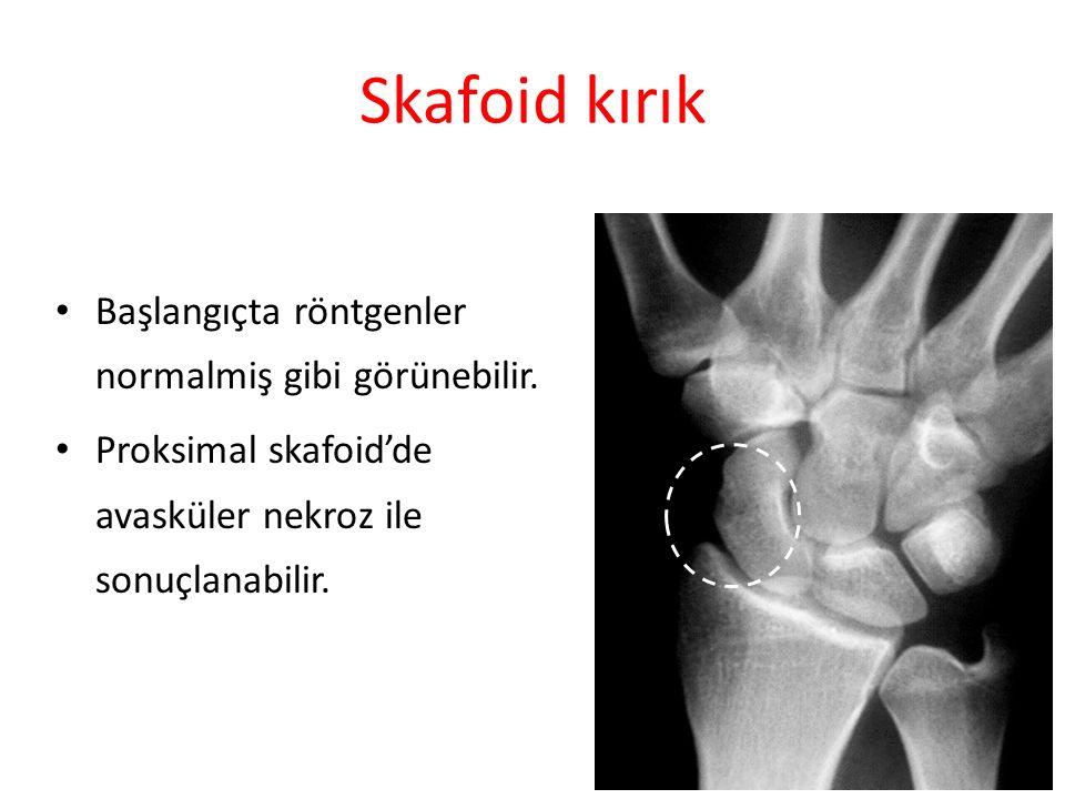 Skafoid kırık Başlangıçta röntgenler normalmiş gibi görünebilir. Proksimal skafoid'de avasküler nekroz ile sonuçlanabilir. 34