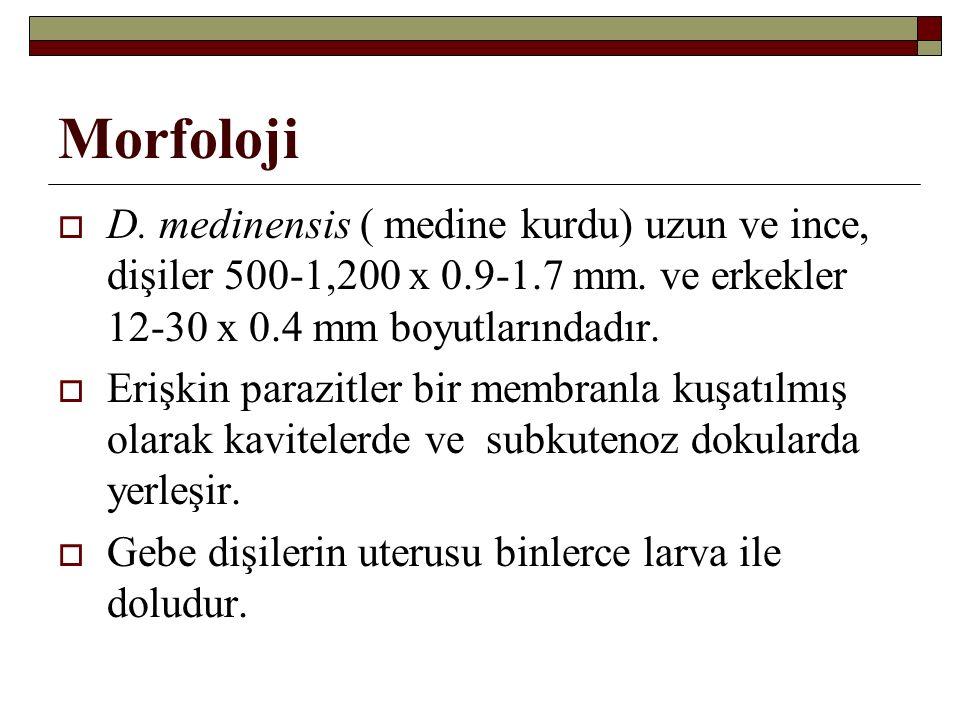 Morfoloji  D. medinensis ( medine kurdu) uzun ve ince, dişiler 500-1,200 x 0.9-1.7 mm.