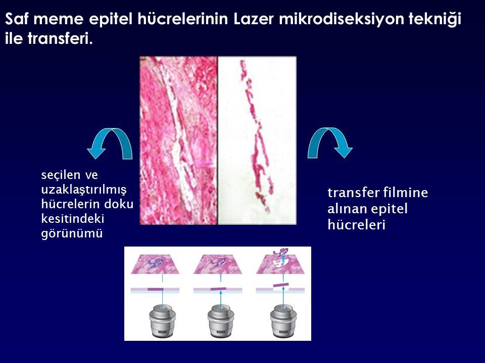 Saf meme epitel hücrelerinin Lazer mikrodiseksiyon tekniği ile transferi.