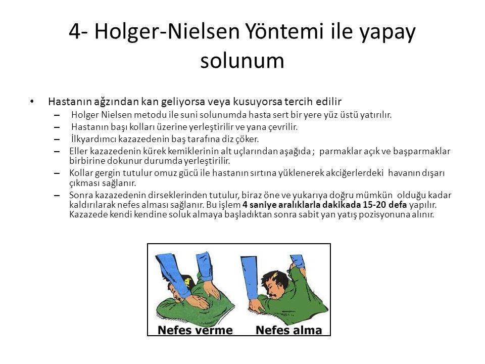 4- Holger-Nielsen Yöntemi ile yapay solunum Hastanın ağzından kan geliyorsa veya kusuyorsa tercih edilir – Holger Nielsen metodu ile suni solunumda hasta sert bir yere yüz üstü yatırılır.