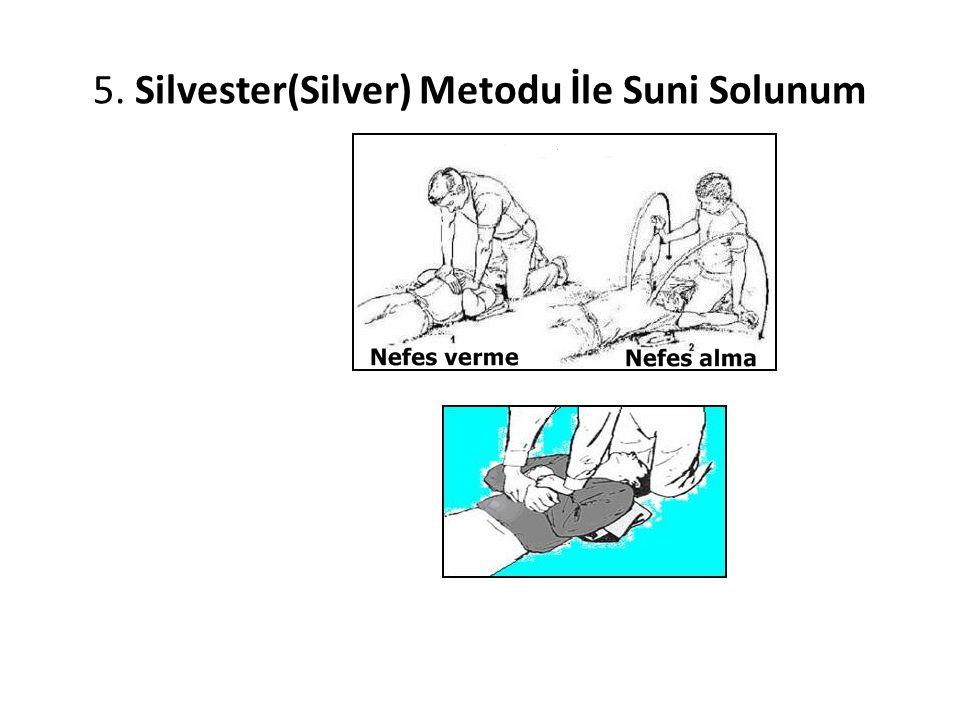 5. Silvester(Silver) Metodu İle Suni Solunum