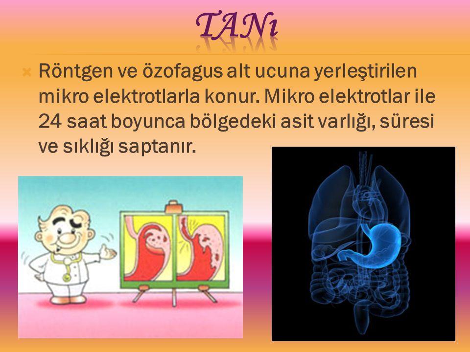  Röntgen ve özofagus alt ucuna yerleştirilen mikro elektrotlarla konur. Mikro elektrotlar ile 24 saat boyunca bölgedeki asit varlığı, süresi ve sıklı