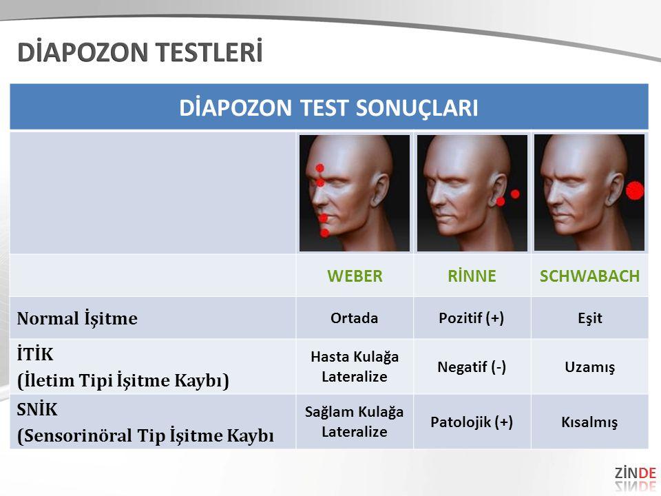 DİAPOZON TEST SONUÇLARI WEBERRİNNESCHWABACH Normal İşitme OrtadaPozitif (+)Eşit İTİK (İletim Tipi İşitme Kaybı) Hasta Kulağa Lateralize Negatif (-)Uzamış SNİK (Sensorinöral Tip İşitme Kaybı Sağlam Kulağa Lateralize Patolojik (+)Kısalmış