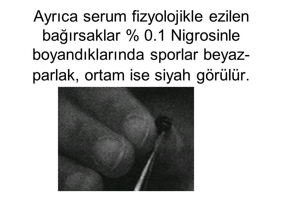 N. apis sporlarını teşhis etmek amacıyla mikroskoptan yararlanılır.