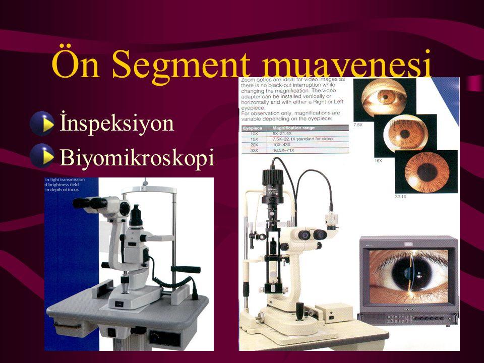 Ön Segment muayenesi İnspeksiyon Biyomikroskopi