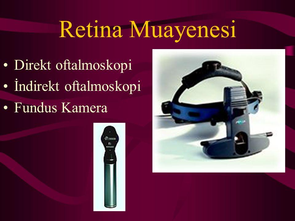 Retina Muayenesi Direkt oftalmoskopi İndirekt oftalmoskopi Fundus Kamera